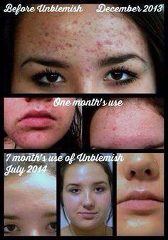 So happy for her new skin! #Unblemish  #RodanandFields #PrescriptionBased #ProactivDoctors #BeforeandAfter #skincare  sarahkwheeler.myrandf.com