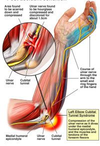 Cubital Tunnel Syndrome, Ulnar Nerve Transposition/Decompression is a nerve compression injury in the elbow that involves the ulnar nerve. At the elbow joint, the ulnar nerve passes through a small passage called the Cubital Tunnel, located near the medial and posterior aspect of the elbow