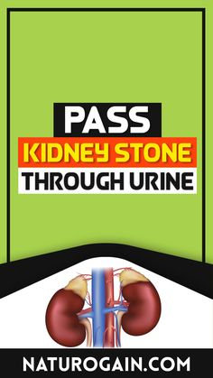 Pass kidney stone through urine without pain and surgery naturally at home with Kid Clear capsules. These capsules contain pure herbal composition, which gives satisfactory results without causing any adverse effects on the user. #kidneystones #kidneystone #kidneyhealth Improve Kidney Function, Kidney Health, Kidney Stones, Healthy Tips, Surgery, Herbalism, Pure Products, Herbal Medicine