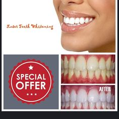 #april#special#2016#laser#whitening#makeover#happy#nofilter #teeth #veneers #implants #whitening #colgate#waterpik #invisalign#cosmetic #consultation #nyc #stardentalsmiles #manhattan #makeover #uppereastside #call#today 212-249-0877 by stardentalsmiles Our Invisalign Page: http://www.myimagedental.com/services/cosmetic-dentistry/invisalign/ Other Cosmetic Dentistry services we offer: http://www.myimagedental.com/services/cosmetic-dentistry Google My Business…
