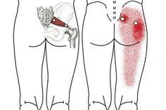 The sciatic nerve is the largest nerve in our body. Sciatica is the pain experienced in the lower back, legs, and buttocks, and it is one of the most common back issues. This pain is usually caused by a pinched or irritated sciatic nerve. Despite the debi Sciatica Pain Relief, Sciatic Pain, Sciatic Nerve, Nerve Pain, Back Pain Relief, Sciatica Massage, Back Pain Remedies, Insomnia Remedies, Back Pain