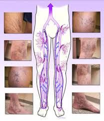 The Vein Care Center specializes in the diagnosis and treatment of vein disorders including large varicose veins, spider veins and leg ulcers. Best Solution without Surgerical Pain.  Log on :  http://theveincarecenter.com/