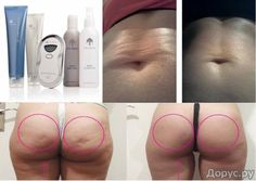 Have a problem area you would like to take care of in the privacy of your own home? Get rid of cellulite for good! Then you need this Galvanic Body Spa Package! Right now through Sunday I can give $85 off! Hurry now and save! Check out the photos of our before and after results! 30 day money back guarantee!! LIMITED SUPPLY MESSAGE ME NOW!! Jessica@youthfulimagellc.com