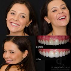 Sydney Cosmetic Dentist, Dr Angelo Lazaris is trusted as Sydney's leading expert in cosmetic dentistry in Australia and abroad. Composite Veneers, In Cosmetics, Cosmetic Dentistry