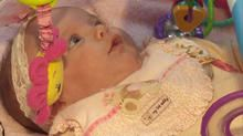 Baby born twice after life-saving surgery outside womb