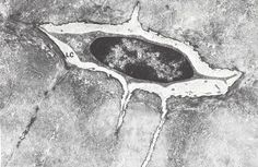 File:Osteocyte 2.jpg