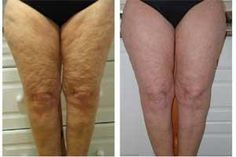 #health #fitness #Weightloss #cellulite get rid of cellulite