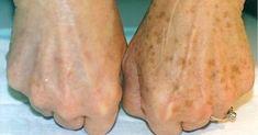 Mit Heilpflanzen Hautflecken behandeln Treat skin spots with medicinal plants Herbal Remedies, Natural Remedies, Beauty Skin, Health And Beauty, Healthy Beauty, Age Spot Removal, Brown Spots On Face, Dark Spots, Skin Spots