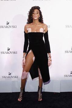 No matter where she goes, Winnie Harlow is dangerously fashionable | Essence.com