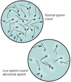 Causes of infertility in women want to get pregnant fast,ayurvedic treatment for infertility in vitro pregnancy,iui cost male fertility clinic. Help Getting Pregnant, Chances Of Getting Pregnant, Causes Of Infertility, Infertility Treatment, Ivf Treatment, Fertility Doctor, Fertility Diet, Medical Laboratory Science, Natural Health Tips
