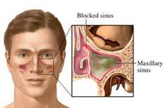 cara mengobati penyakit sinusitis secara alami