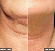 The secrets to reduce and lose turkey neck lie with your own fingertips. Facelift exercises are very powerful to prevent and improve sagging neck and face skin http://www.facelift-without-surgery.biz/yogafacialexercises.html  #ruboutwrinkles #turkeyneckexercises #losemyturkeyneck #getridofturkeyneck #exercisesforsaggingneck #facialworkouts #faceexercises #facialtoningsystem