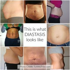 Many women choose to live with their frustrating tummies and chronic pain without knowing that it's the result of diastasis recti - a separation in the abdominal wall. There are many other symptoms related to diastasis recti that you may have been living with. Find out more about diastasis on our website.