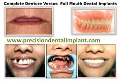 #Painless #dental #implants- benefits of getting this dental surgery