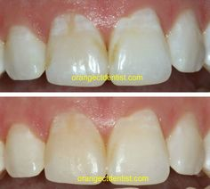 Before and after photos for the non-invasive treatment of white spots. Oral Health, Health And Wellness, Dental Photos, West Haven, Dental Services, Spot Treatment, Dentistry, Teeth, Orange