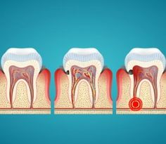 National Alliance Aims to Reduce Dental Disease in U.S.