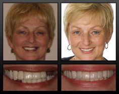Tooth loss can be a big cause of despair.