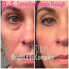 If you are looking for a Christmas that will make anyone happy - it's THIS PRODUCT‼️ Our Amazing Bright Eye Complex has fast results. Look at Jamie McCurdy Raleigh results This bright Eye has an illuminicity, helps with dark circles and puffiness. You or your loved one will ❤️. Great stocking stuffer - order soon so you can have by Christmas
