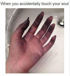 When You Accidentally Touch Your Soul Intj Intp, Mbti, Sarcasm Only, Sarcasm Humor, Self Deprecating Humor, Quotes That Describe Me, Supportive Friends, Your Soul, Totally Me
