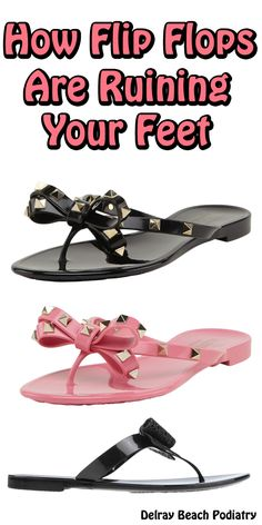 OMG! FIND OUT how flip flops are ruining your feet.