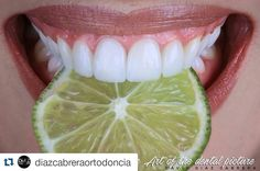 #Repost @diazcabreraortodoncia with @repostapp  The Art Of The Dental Picture @diazcabreraortodoncia #Repost @smilegroupbogota with @repostapp.  Carillas Cerámicas Indirectas Un tratamiento de nuestro #smileteam Rehabilitadora Dra. Andrea Alvarez @andreaalvarez73 y Capturado con la creatividad del lente del Dr. @diazcabreraortodoncia. #SMILEGROUP #smilegroupbogota #esteticadental #estheticdental #estetica #Bogotá #colombia #venezuela #caracas #dental #dentalphotographycgroup…