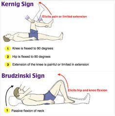 Kernig's sign, at DuckDuckGo Medical Mnemonics, Pharmacology Nursing, Icu Nursing, Pediatric Nursing, Physical Therapy Quotes, Examen Clinique, Nursing School Notes, Medical School, Nursing