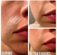 Rodan and Fields Skincare Join me in business. Change people's lives. Get paid for talking about washing your skin. mloveall.myrandf.com #rodanandfields #beyourownboss #workfromhome