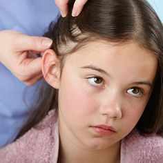 20 ways to kill head lice, including home remedies, over-the-counter, or prescription