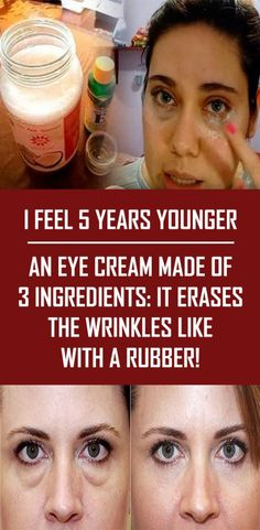Strict Weight Loss Diet I Feel 5 Years Younger An Eye Cream Made Of 3 Ingredients It Erases The Wrinkles Like With A Rubber!Strict Weight Loss Diet I Feel 5 Years Younger An Eye Cream Made Of 3 Ingredients It Erases The Wrinkles Like With A Rubber! Beauty Care, Beauty Skin, Health And Beauty, Face Beauty, Healthy Beauty, Top Beauty, Homemade Eye Cream, Homemade Wrinkle Creams, Beauty Hacks For Teens