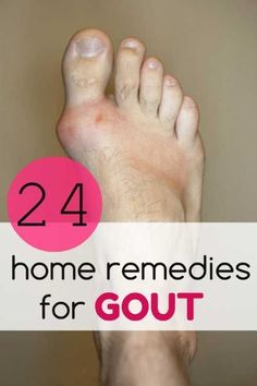 Gout is a type of arthritis that mostly affects joints on the knees, ankles, wrists and hands. The most common cause of #arthritistypes