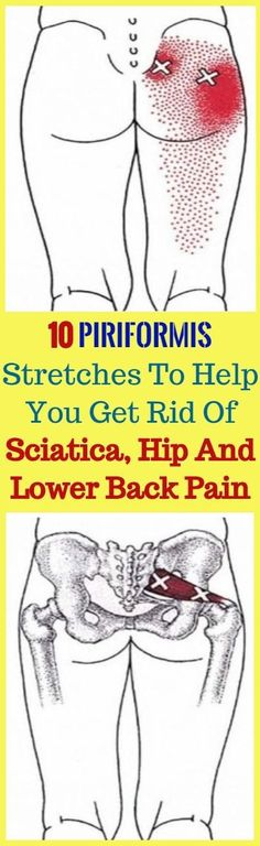 Joint Pain Remedies 10 Piriformis Stretches To Help You Get Rid Of Sciatica, Hip And Lower Back Pain Sciatica Exercises, Back Exercises, Hip Stretches, Stretching, Back Strengthening Exercises, Sciatica Symptoms, Sciatica Pain Relief, Sciatic Nerve, Nerve Pain