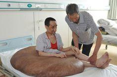 Dünyanın en büyük tümörü vücudundan çıkarıldı