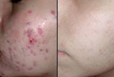 GREAT ACNE TREATMENT