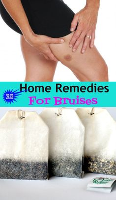 20 Home Remedies for #Bruises  #HomeRemedies for Bruises #SkinCare #HealthAndWellness #HealthMatters