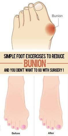 Bunions occur when the tissue at the base of your big toe becomes swollen, forming a large bump on the side of your