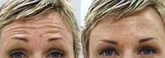 The Lasting Solution For Brow Creases And Deep Frown Wrinkles: Employ These Yoga Face Regimens