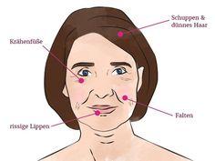 Dass sich unser Gesicht im Laufe des Lebens verändert, ist normal. Doch einigeVeränderungen weisen auf einen Vitamin- oder
