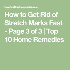 How to Get Rid of Stretch Marks Fast - Page 3 of 3   Top 10 Home Remedies