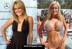 Heidi Montag plastic surgery http://www.drwigoda.com/