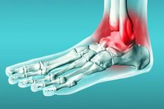 Have You Sprained Or Twisted Your Ankle Find A Physio: Metro Physio www.metrophysio.co.uk