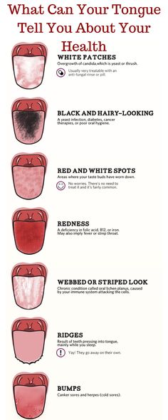 WHAT CAN YOUR TONGUE TELL YOU ABOUT YOUR HEALTH