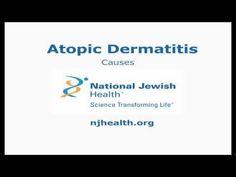 National Jewish Health Atopic Dermatitis Day Program