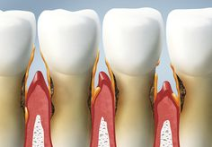 Causes and Treatment of Gum Disease #dentistry #dentalcare