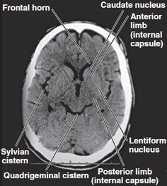 ct brain anatomy basal ganglia - Google Search