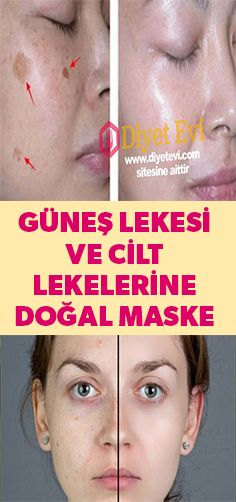 Remove sunspots and skin blemishes with natural mask - .- Güneş lekesi ve cilt lekelerine doğal maske ile son verin – Remove sunspots and skin blemishes with a natural mask – – care - Nail Plate, Sun Care, Healthy Nails, Homemade Skin Care, Care Quotes, You Nailed It, Hair And Nails, How To Remove, Weight Loss