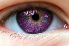 """Alexandria's Genesis, also known as """"violet eyes"""" (a mutation). It does not affect a person's vision. The person's eyes are blue or gray at birth.After six months, the eyes begin to change their original color to purple, and it lasts six months. During puberty, the color deepens to dark purple, a purple color, a royal purple, or blue-violet and remains so. It does not affect a person's vision. Women that are born with this genetic mutation do not menstruate."""