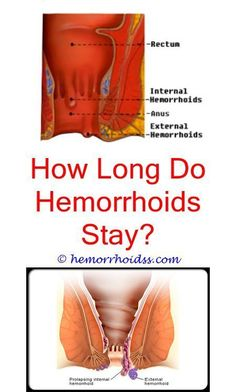 5 Crazy Tips: How To Use Preparation H For Hemorrhoids? what are the symptoms for internal hemorrhoids?How Do U Know U Have Hemorrhoids? how to control hemorrhoids during pregnancy?How To Control Hemorrhoids During Pregnancy? Home Remedies For Hemorrhoids, Varicose Vein Remedy, Varicose Veins, Postpartum Hemorrhoids, Getting Rid Of Hemorrhoids, Natural Remedies