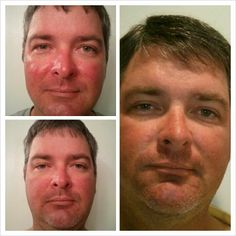 """This is my husband who has been using the Soothe regimen for Rosacea & Facial redness. Top left is before, bottom left is after 1 week, and right is at 5 weeks with ONLY once a day usage."" REAL results! REAL people. sarahkwheeler.myrandf.com"