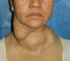 glanda tiroida simptome femei