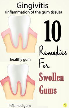 Do you suffer from swollen gums? If you do, you probably often go through a lot of discomfort and pain. Here are some effective home remedies for you to know